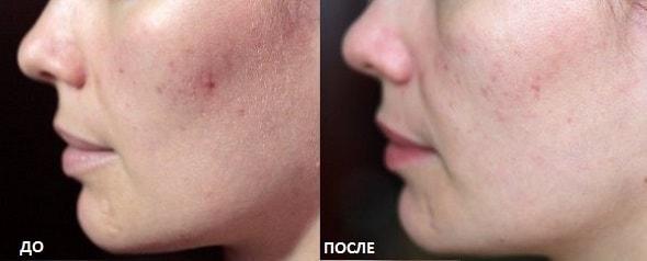 ultrazvukovaja chistka lica
